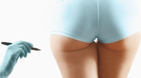 Chăm sóc sau phẫu thuật nâng mông