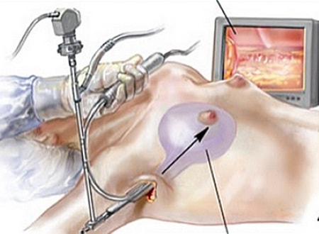 Hình : Mô tả phương pháp nâng ngực nội soi.