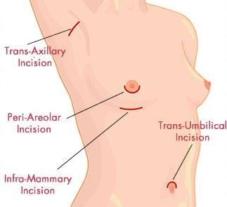 Vị trí vết mổ nâng ngực