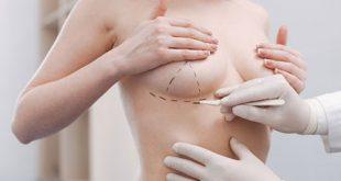 Phẫu thuật nâng ngực - Thế giới đẹp