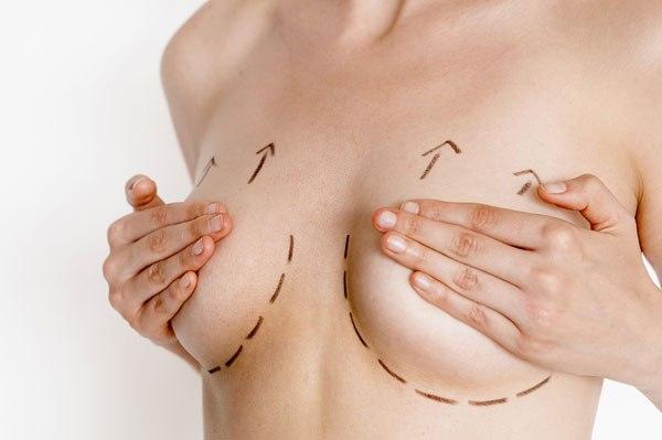 Image result for nâng ngực sau sinh